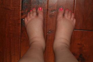 pregnant-swollen-feet